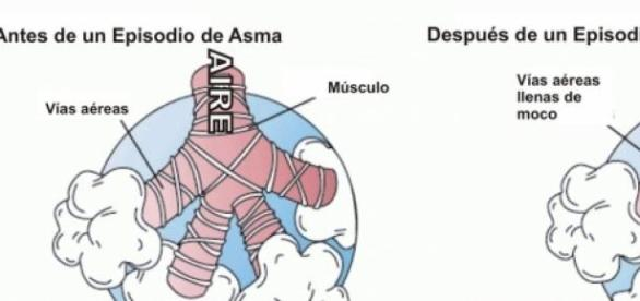 Contracción de la vía aérea en un episodio de asma