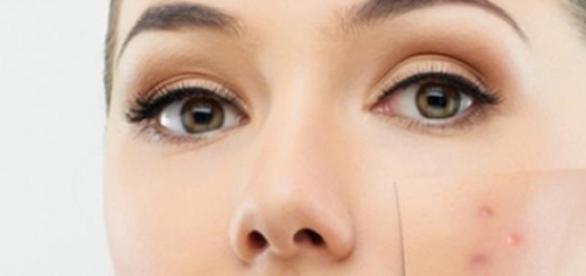 acneea trebuie combătută din interior