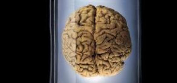 Desaparecen 100 cerebros de un s´tano