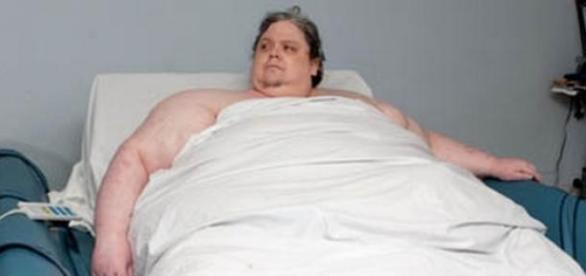 Keith Martin, el hombre más gordo del mundo.