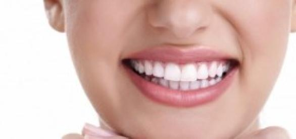 ¿Por qué deberíamos usar carillas dentales?