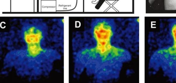Emisión de biofotones por el cuerpo humano