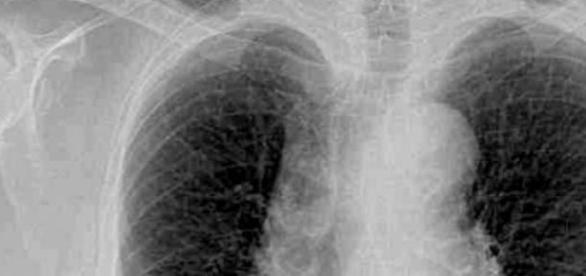 Radiografía de los pulmones