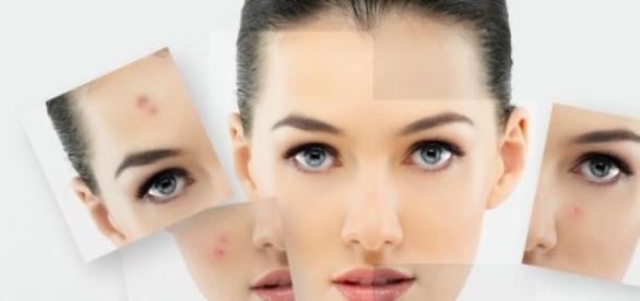 Motive pentru care nu poti scapa de acnee