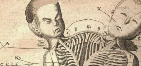 Desenho esquemático de gêmeos siameses