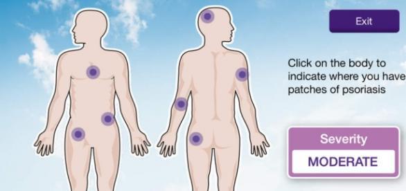 App Psoriasis 360, laboratorios Janssen