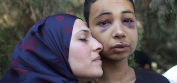 Tariq Abu Khdeir o jovem agredido brutalmente