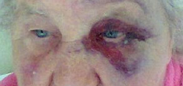 Bătrană atacată în plină stradă