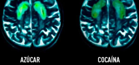 Efectos en el cerebro del azúcar y la cocaína