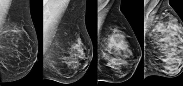 Imagem mostrando câncer de mama