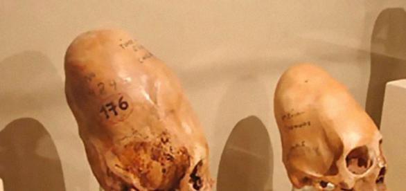 Crânios são mais pesados que os humanos