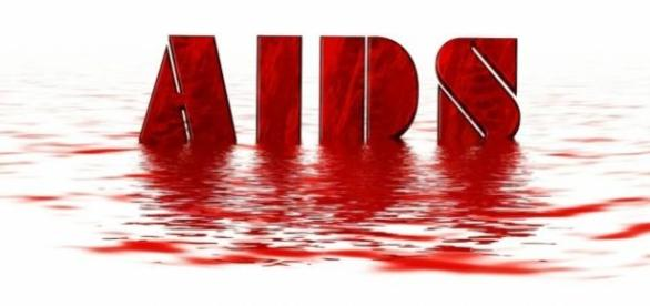 HIV SIDA: um novo desafio