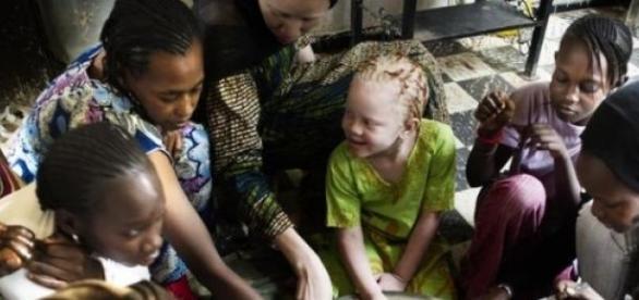 Les enfants albinos sont victimes d'attaques.