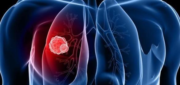 Reguli de prevenire a cancerului