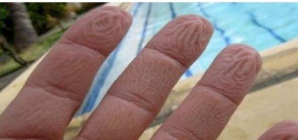 De ce se increteste pielea degetelor?