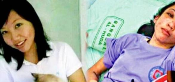 Erwiana foi torturada pela patroa por oito meses.