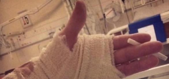 Josh tras perder un dedo y seguir de fiesta