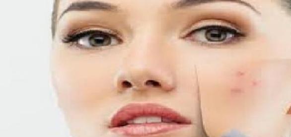 Rezolvarea eficienta a problemei acneei