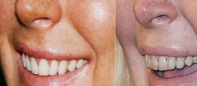 Hábitos diários que estão a destruir os seus dentes