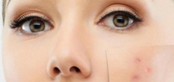 Afla care sunt miturile despre acnee