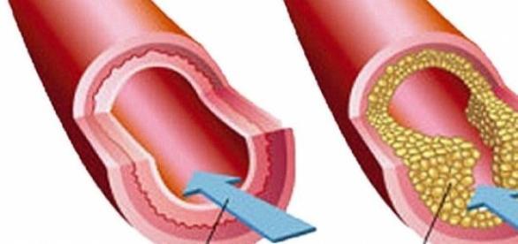 colesterol depunere fibre alimentare