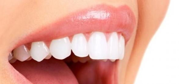Curatati-va dintii si aveti grija de gingii.
