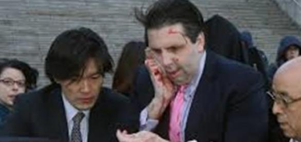 El embajador de EEUU tras la agresión sufrida