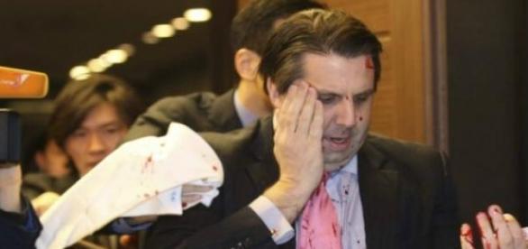 Embaixador americano foi agredido durante evento