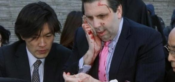 Embaixador sofre ferimentos na cara, braço e mão