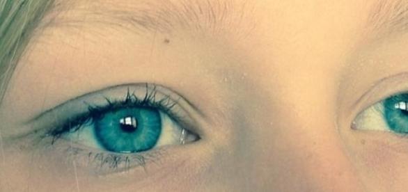 Con tratamiento láser tendremos ojos azules