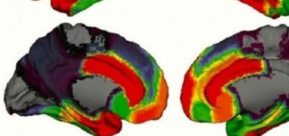 Mapa de la actividad cerebral