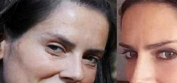 Adriana Barrientos se operó la nariz