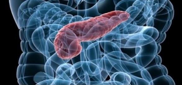 Cáncer de páncreas, un tumor muy agresivo