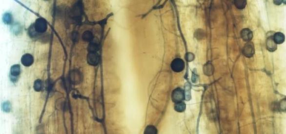 Esporos intraradiculares de R. intraradices