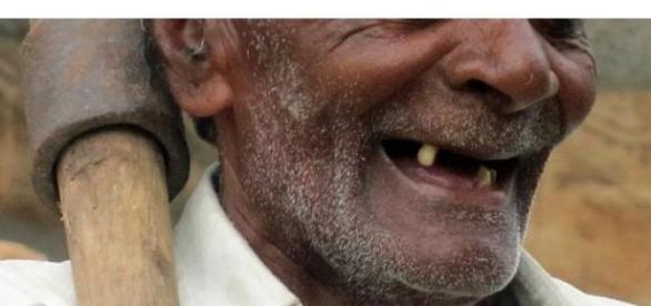 Militares brasileiros sem número mínimo de dentes