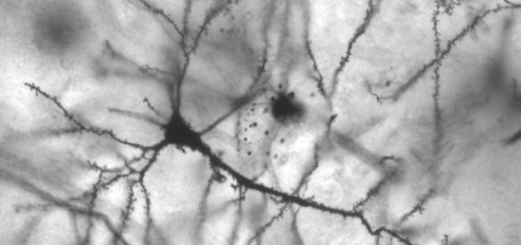 Detalle de una red neuronal