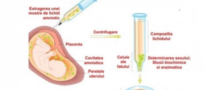 amniocenteza-metoda de procedură