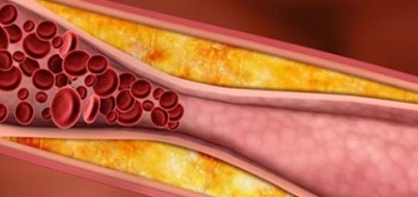Remediu pentru curatarea arterelor de depuneri