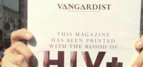 Sânge infectat cu HIV pentru tipar