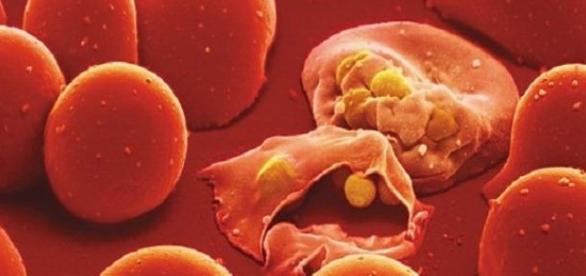 Vacuna contra el virus de la Malaria
