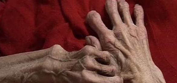 Femeie se află într-o stare groaznică: piele şi os
