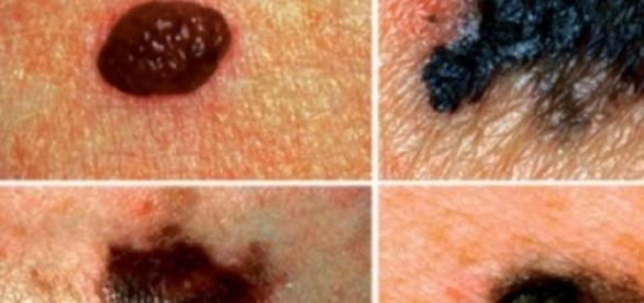 Alunițe cu risc ridicat de cancer