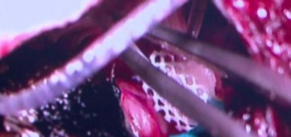 Wszczepianie implantu do pnia mózgu