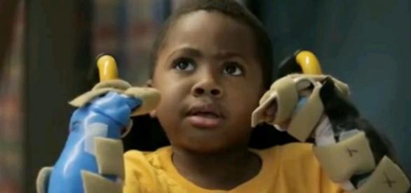 Zion Harvey, pacientul de 8 ani, după operaţie