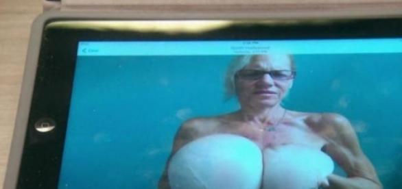 Femeia cu sani de 15 kilograme a fost operata