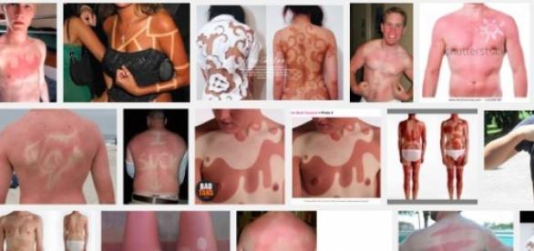 It's easy to find 'sunburnt art' online.