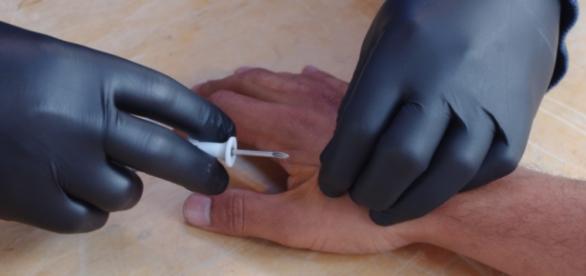 Implantan un chip en un humano