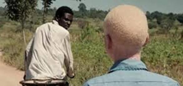 Albinos vítimas de sequestro em Moçambique