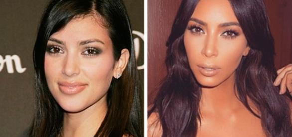 Antes e depois de celebridades que fizeram bichectomia