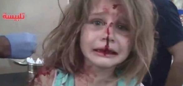 Garota ferida em bombardeio na Síria se desespera ao procurar pelo pai.